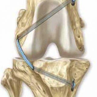 """¿Cuál es la mejor técnica quirúrgica para """"reparar"""" el ligamento cruzado en perros? #Veterinaria."""