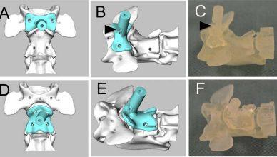 Impresión 3D para tratar la subluxación atlantoaxial en perros de raza pequeña